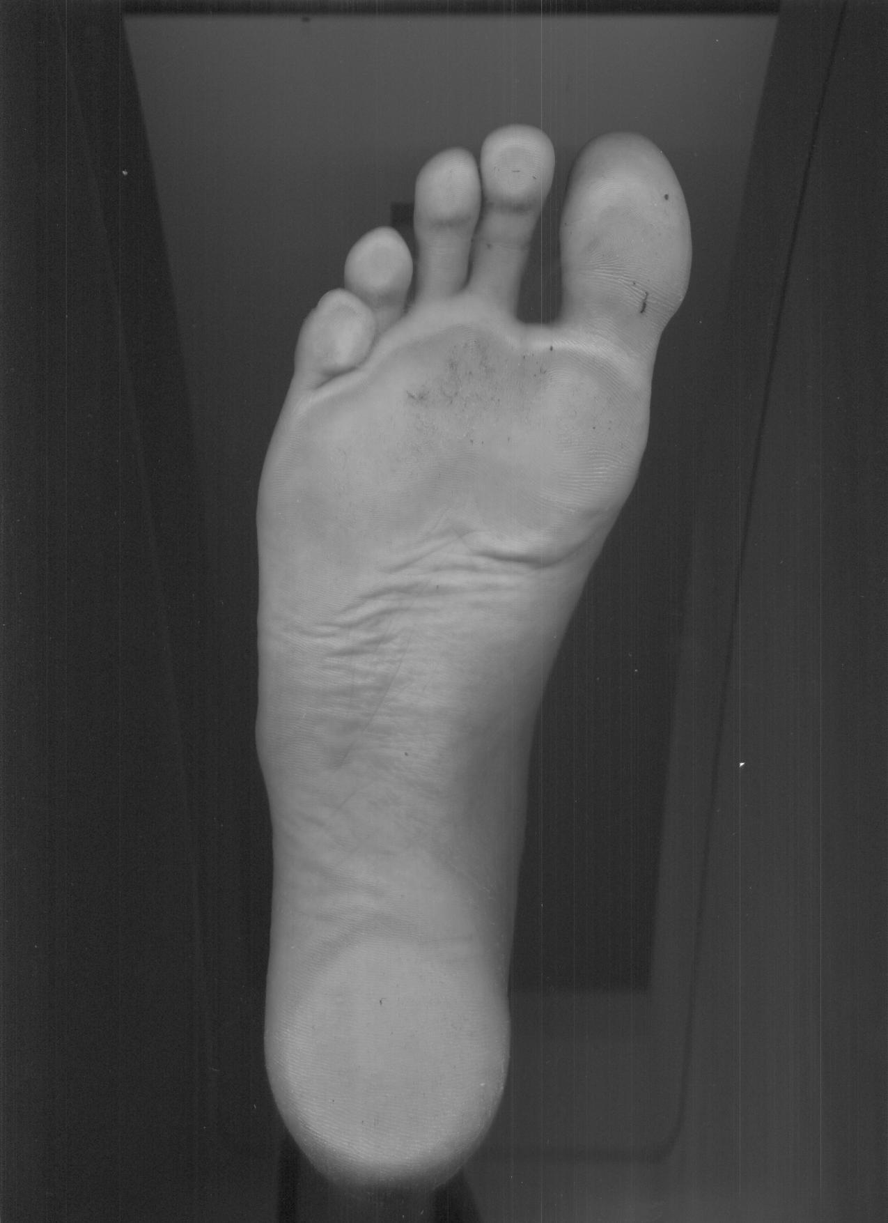 Right foot.jpg