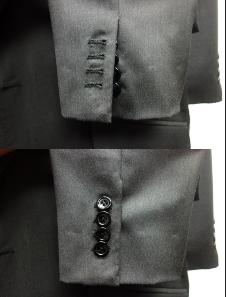 Right Cuff buttoned and unbuttoned
